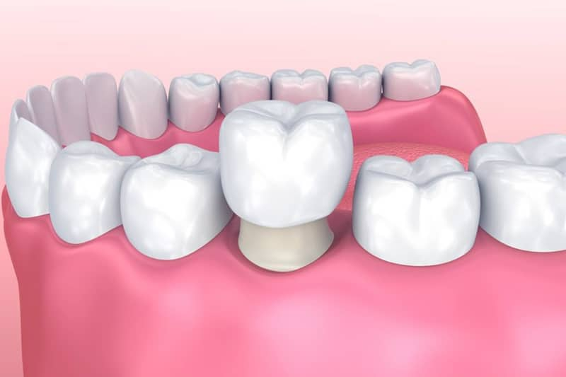 Dentus perfectus - zubne krunice - estetika bez kompromisa