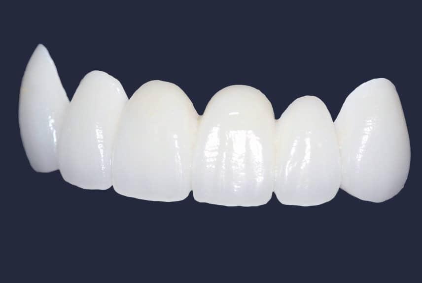 Dentus perfectus - cirkon keramika