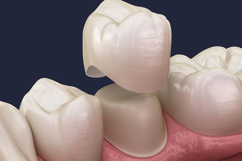 Dentus perfectus - keramičke krunice