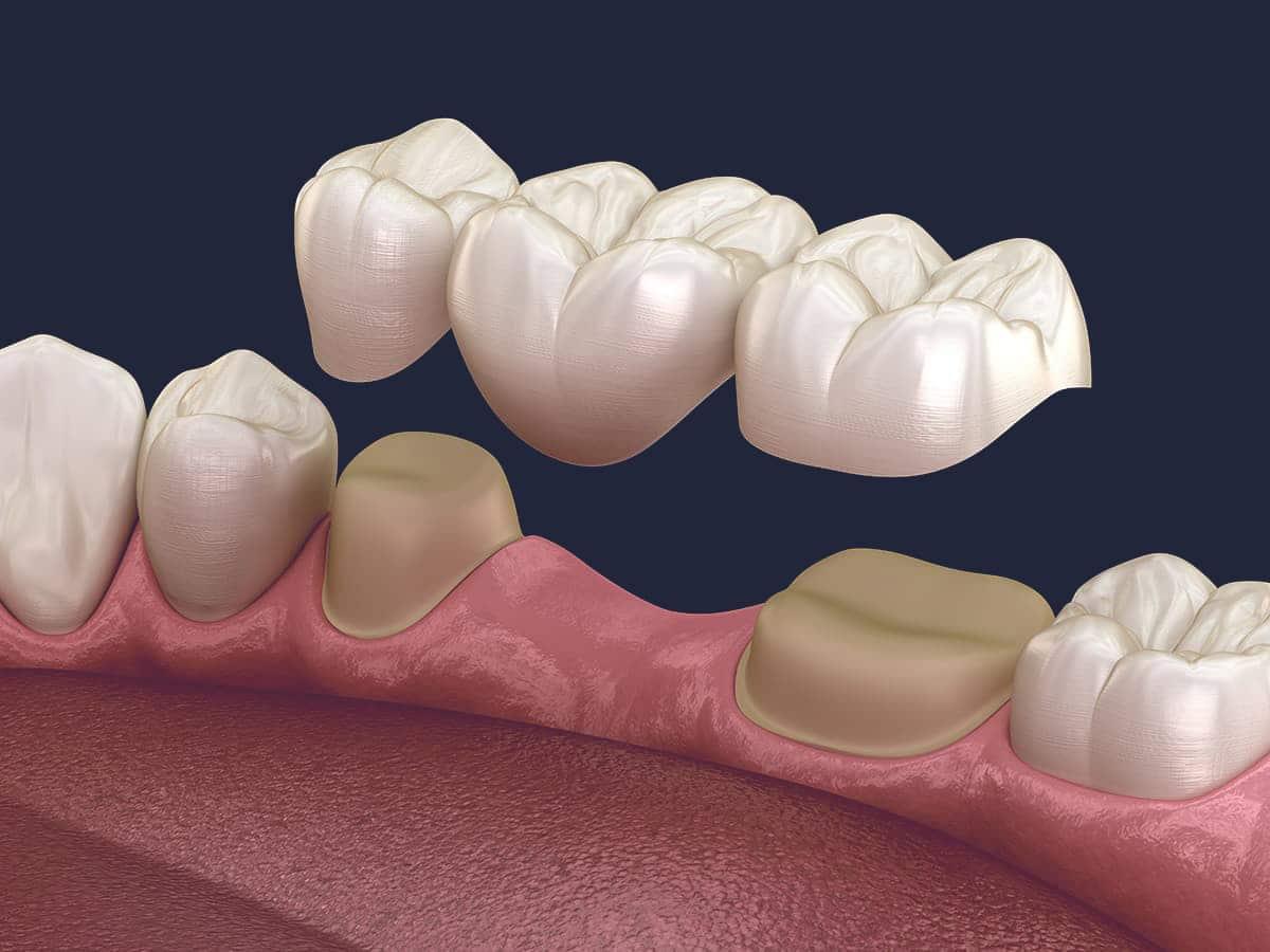 Dentus perfectus - all on 4 - izrada trajnog mosta