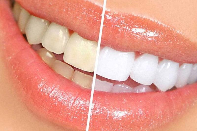 Dentus perfectus - izbjeljivanje zubi (bleaching)