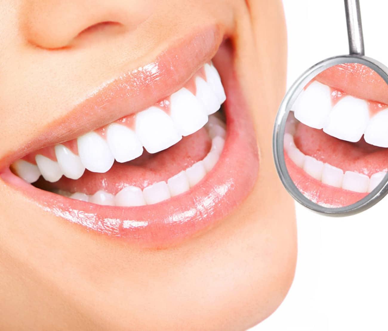Dentus perfectus - izbjeljivanje zubi