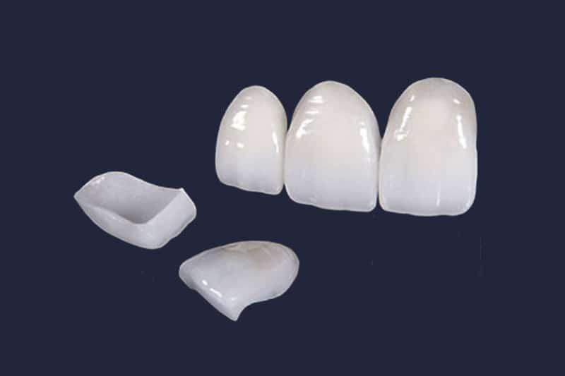 aesthetic dentistry Dentus Perfectus veeners