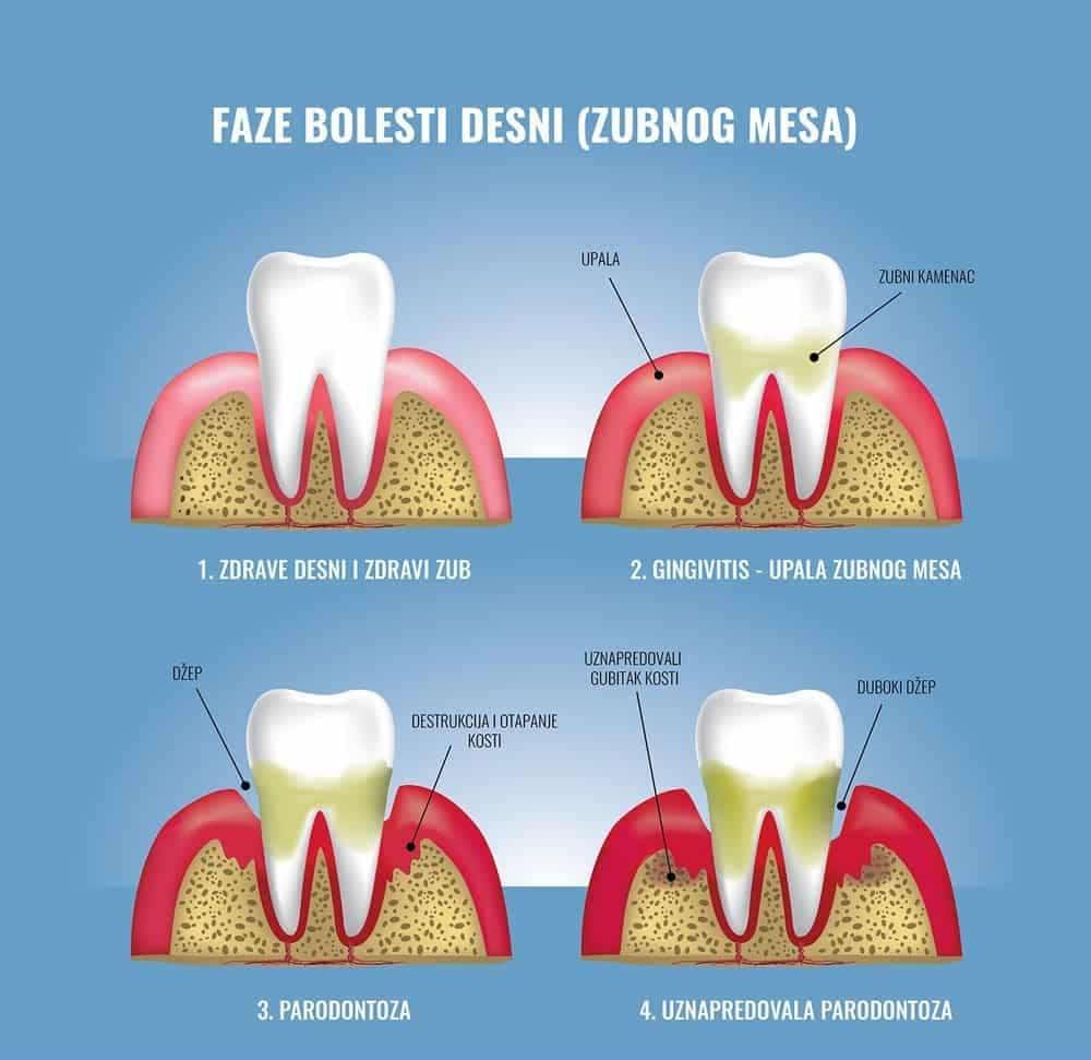Dentus perfectus - pjeskarenje-zubni-kamenac-infografika