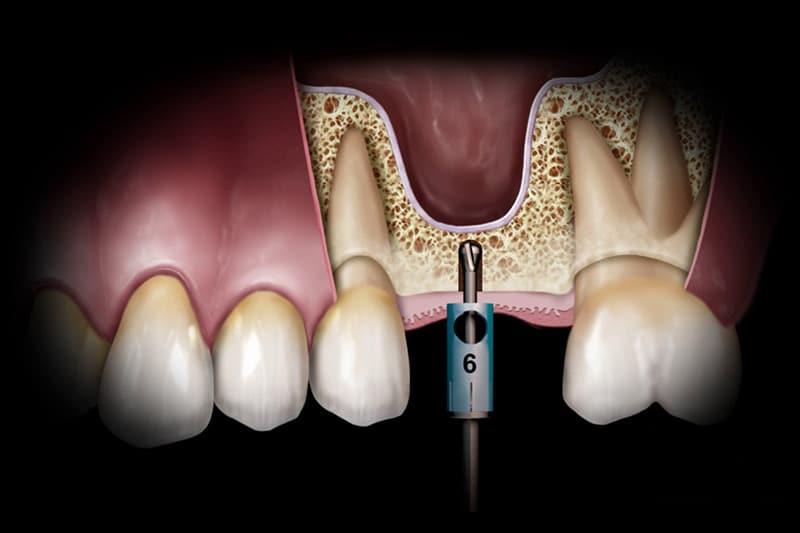 Dentus perfectus - podizanje dna sinusa