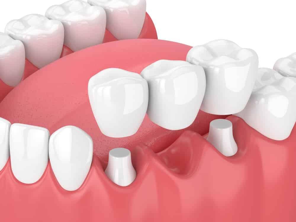 Dentus perfectus - prednosti zubnog mosta