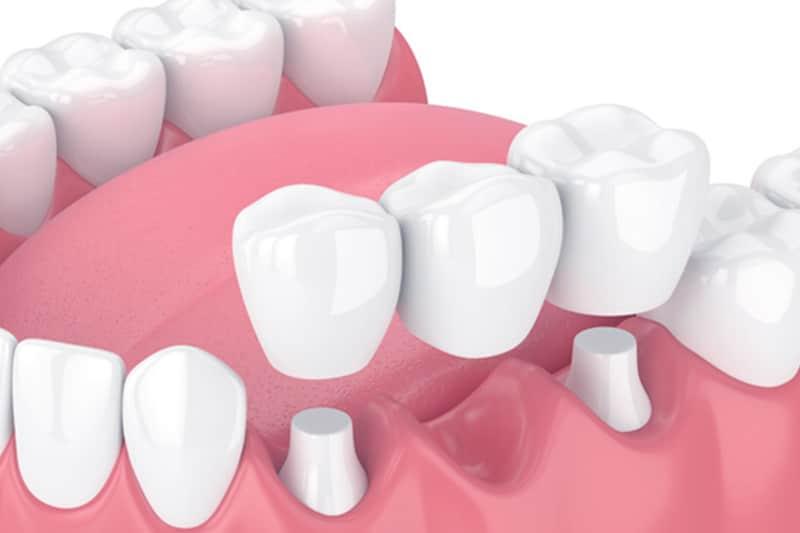 Dentus perfectus - protetika - zubni most