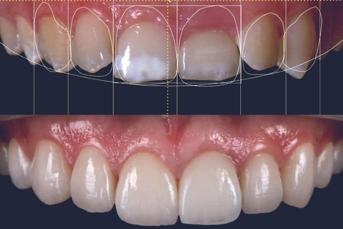 Dentus perfectus - smile design