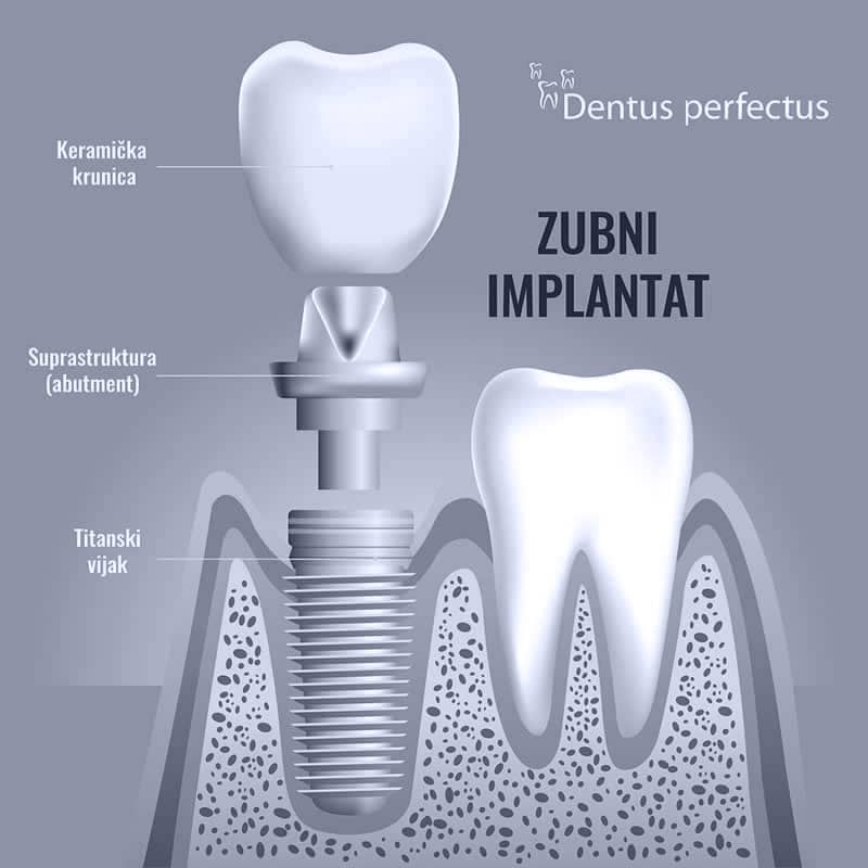 Dentus perfectus - ugradnja zubnog implantata