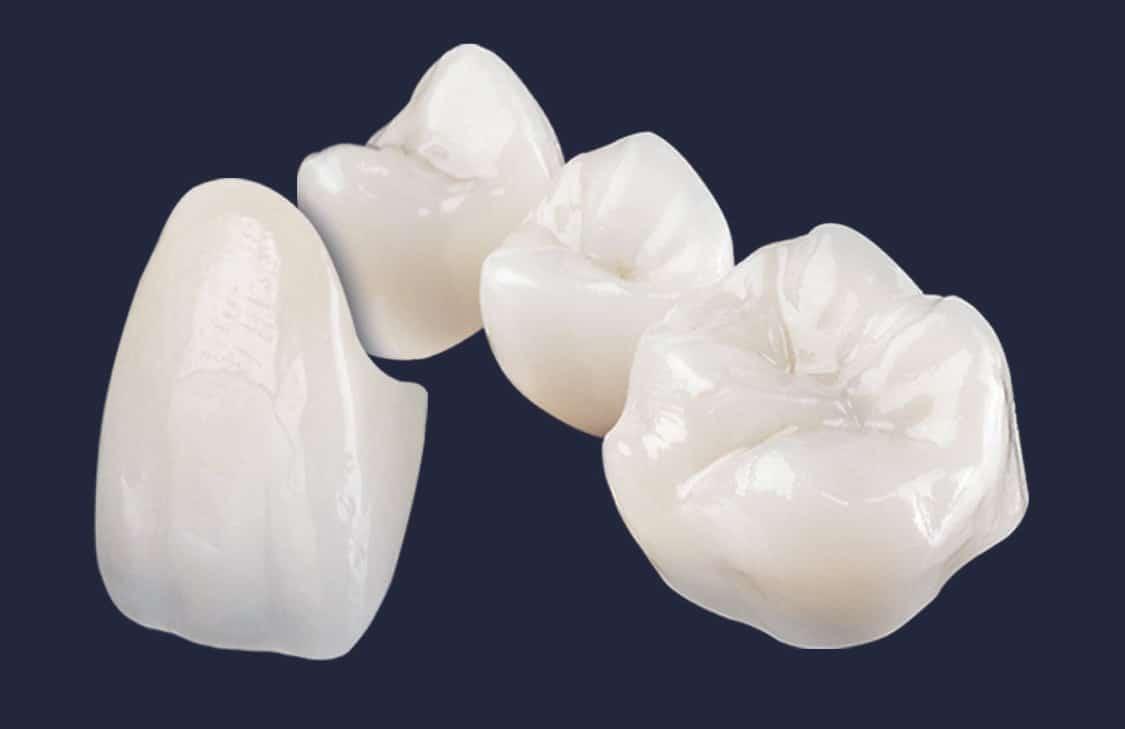 Dentus perfectus - zubne krunice - navlake za zube
