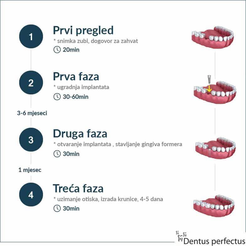 Dentus perfectus - ugradnja implantata