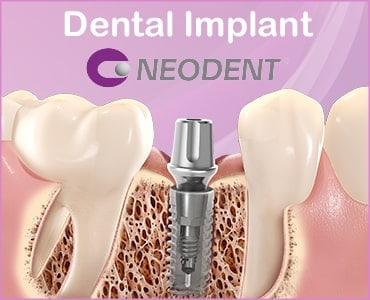 Dentalni implantati - Neodent - Dentus perfectus