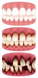 Dentus perfectus - bolesti desni