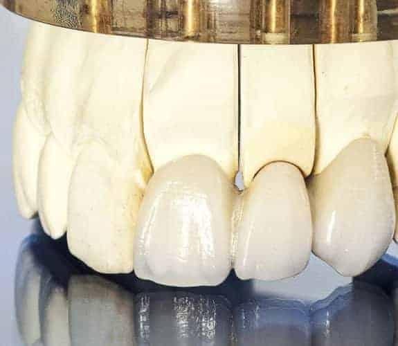 Dentus perfectus - most na prirodnim zubima