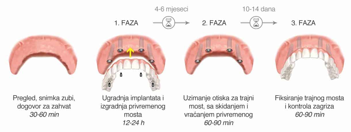Most na 4 implantata - faze - Dentus perfectus