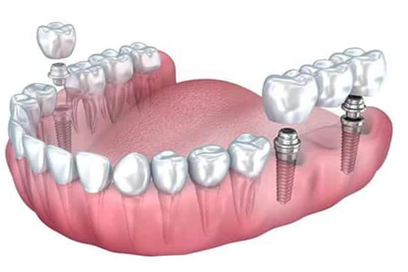 Most na implantatima 3 -Dentus perfectus