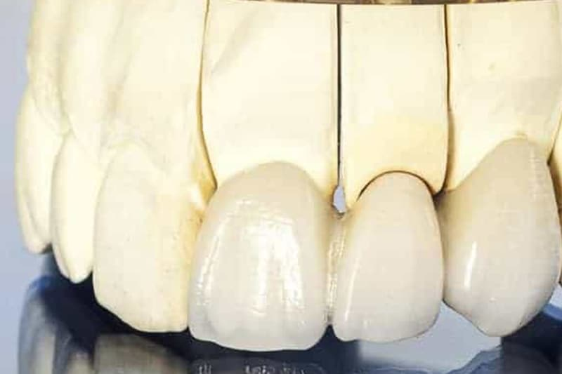 Most na prirodnim zubima 3 - Dentus perfectus