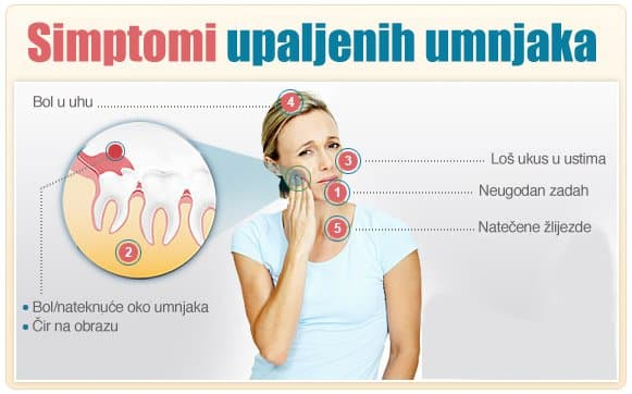 Vađenje umnjaka - simptomi upale- Dentus perfectus