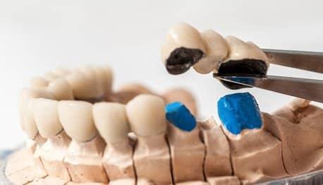 vrste zubnih mostova - Dentus perfectus - Zagreb